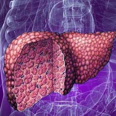 Лечение холецистита популярным гепатопротектором Карсил